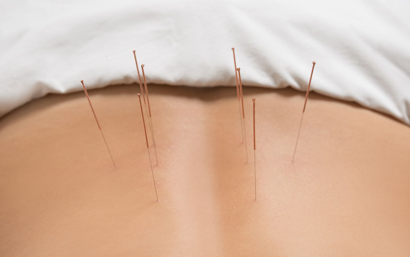 acupuncture treatment hitchin