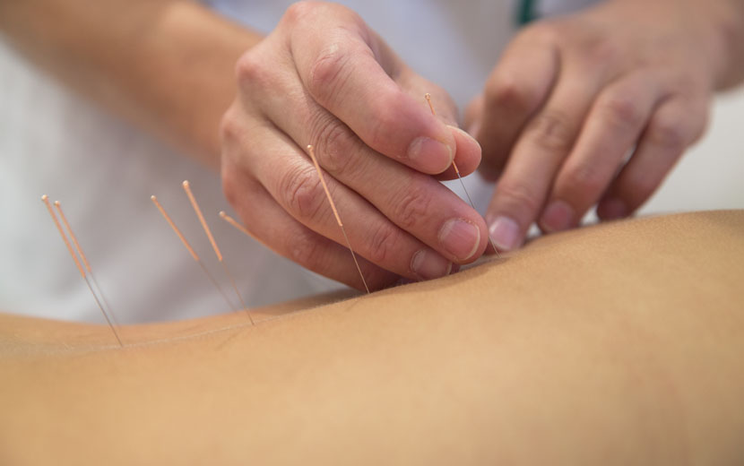 effective acupuncture therapy hitchin